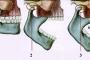 Viêm khớp thái dương hàm có nguy hiểm không? Có chữa được không?