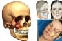Gãy xương gò – Chi phí phẫu thuật gãy xương gò má bao nhiêu tiền?