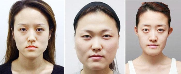 Phẫu thuật gọt mặt V line 3D tại Bệnh viện thẩm mỹ Hàn Quốc